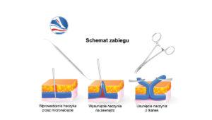miniflebectomia-1